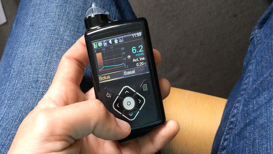 insulino pompos nuoma