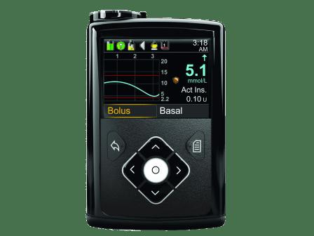 Insulino pompos MiniMed 640G sistema su nuolatinio gliukozės matavimo funkcija